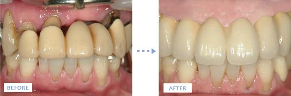 上顎造骨後のインプラント治療写真前後