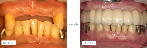 上顎オールオン4によるインプラント治療前後の写真