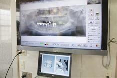 大型モニターに映し出されたインプラント治療後のレントゲン写真