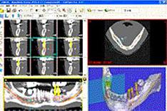 歯のCT画像を使ったシミュレーション画面