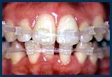 透明な素材が使われたワイヤーブラケットが装着された歯