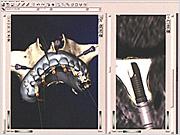 インプラント埋入コンピューターグラフィックス画面