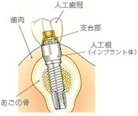 歯茎に埋め込められたインプラントの構造説明図