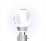 歯科用のインプラントとアバットメント