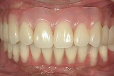 インプラント治療後の歯を噛みあわせた状態