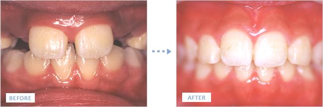 矯正治療で歯並びが綺麗になった前歯