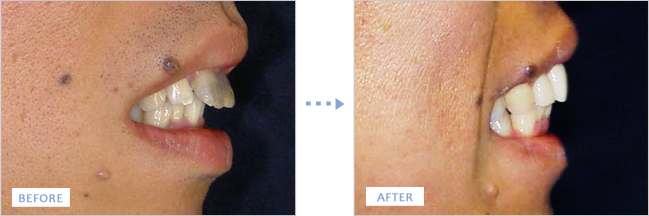 出っ歯(上顎前突症)矯正後の口元を横から見た写真