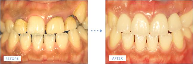 審美歯科施術前後の歯