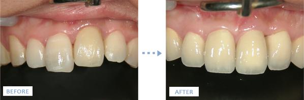 人工骨とインプラントによる前歯の治療前後の写真