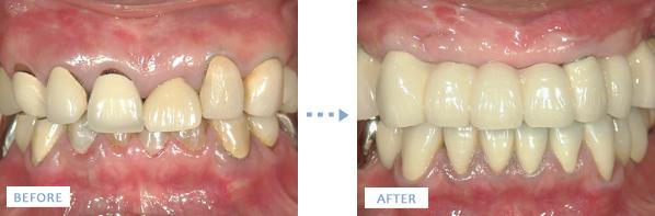 入れ歯からオールオン4インプラント治療前後の写真