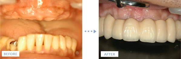 上顎インプラント治療前後の写真