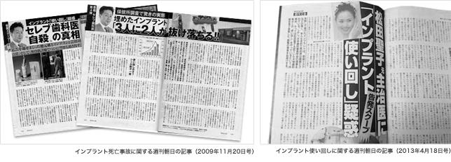 インプラントを使いまわした内容を取材した週刊誌の記事