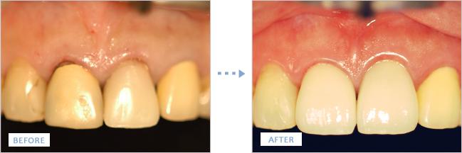 セラミッククラウンで治療した前歯の治療前後の写真