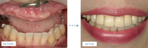 上顎サイナスリフトによるインプラント治療前後の写真