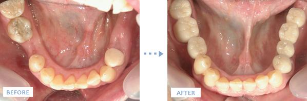 下顎奥歯左右を造骨しつつのインプラント治療前後の写真