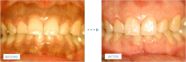 ホワイトニング・オフィスブリーチング前後の歯