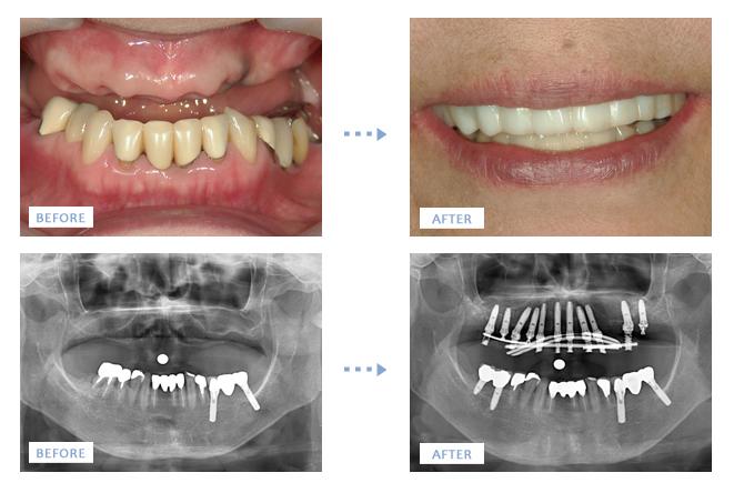 ワンデイインプラント手術前と手術後の口元の写真とレントゲン写真