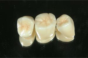 セラミッククラウンで作られた奥歯