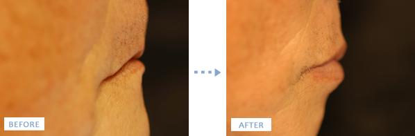 オールオン4手術前後の口元の変化を横から見た写真