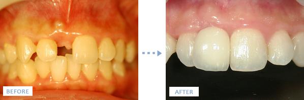 前歯のインプラント手術前後の写真