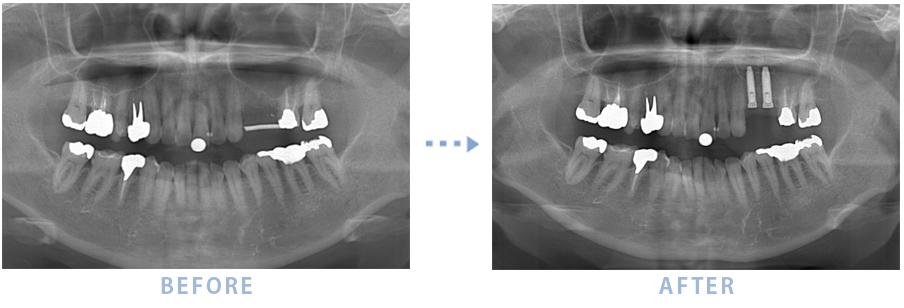 2014年7月のインプラントの症例1