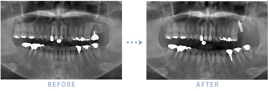 2014年7月のインプラントの症例2