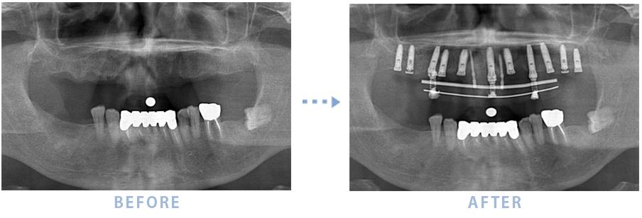 2014年8月のインプラントの症例2