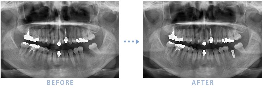 2014年10月のインプラントの症例2