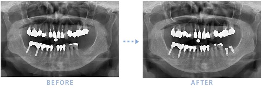 2014年11月のインプラントの症例1