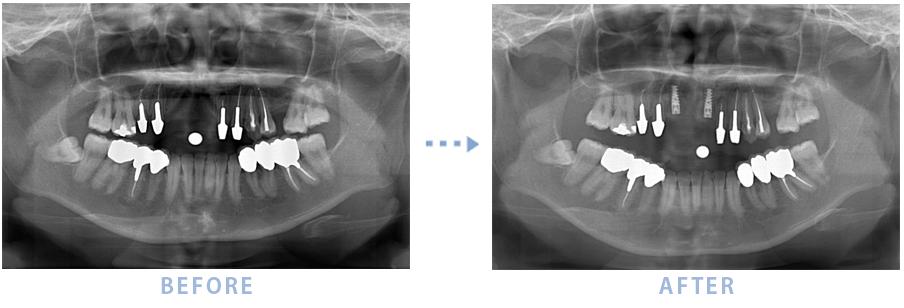 2014年12月のインプラントの症例2