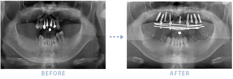 2015年1月のインプラントの症例2