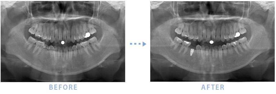 2015年4月のインプラントの症例1 乳歯を抜歯しインプラントを埋入