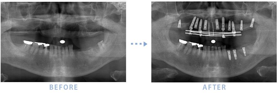 2015年4月のインプラントの症例2 上顎全てと下顎の奥歯にインプラントを埋入
