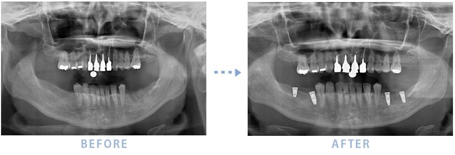 奥歯が歯ぎしりのため破折し前医で抜歯後インプラントを埋入したケース