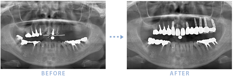 2014年1月のインプラントの症例2