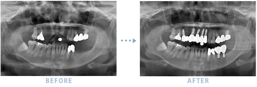 2014年2月のインプラントの症例2