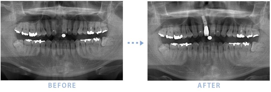 2014年2月のインプラントの症例1