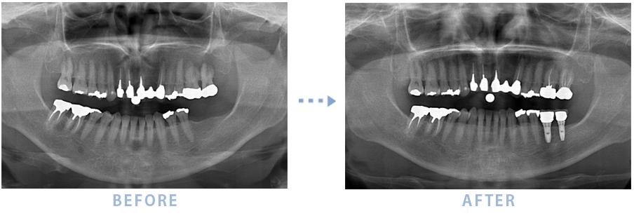 2014年3月のインプラントの症例1