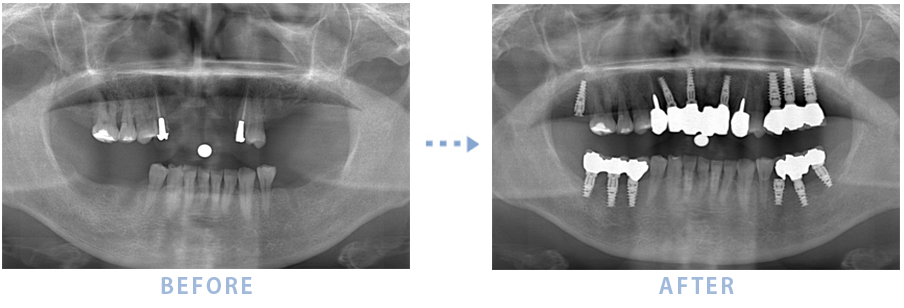 2014年3月のインプラントの症例2